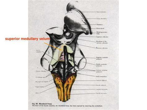 PPT - Forth ventricle PowerPoint Presentation - ID:3003197