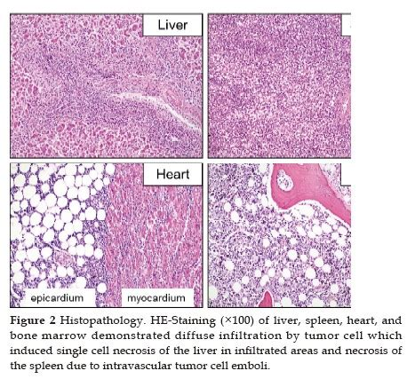 Fulminant Acute Liver and Heart Failure from Hepatosplenic